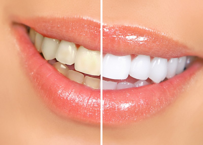 teeth whitening services Morristown, NJ